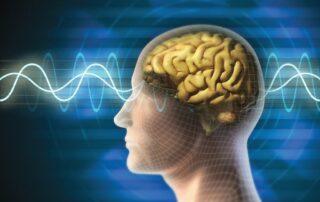 brain-sinus-rhythm